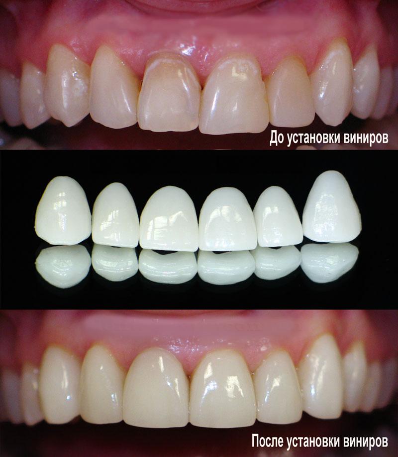 Керамические виниры цена на один зуб москва